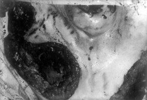 Расчлененнка сделанная людоедом Иссеи Сагавой