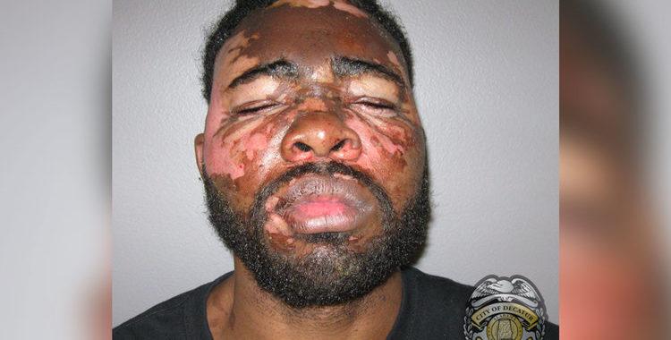 Скандалы и криминал: Женщина пресекла попытку вооруженного грабителя, выплеснув ему в лицо из кастрюли