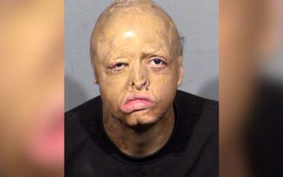 Криминальные новости: Подросток с обгоревшим лицом был обвинен в убийстве пожилого человека