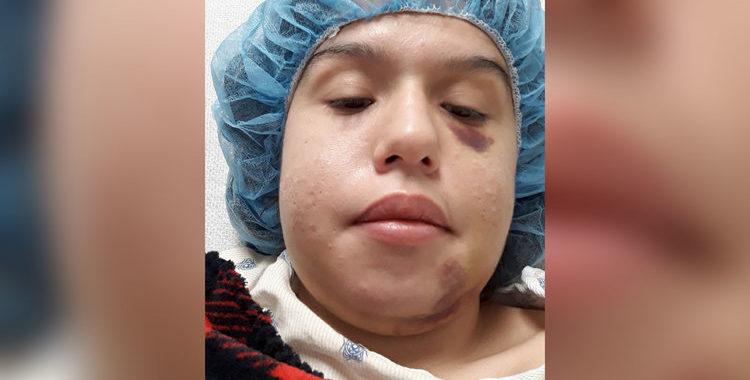 Криминальные новости: Спустя почти два месяца после жестокого избиения, состояние молодой техасской женщины значительно улучшилось