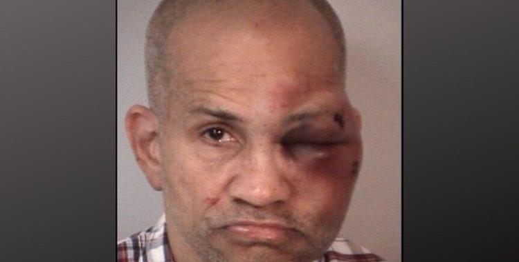 Скандалы и криминал: Мужчине были нанесены серьезные травмы на лице