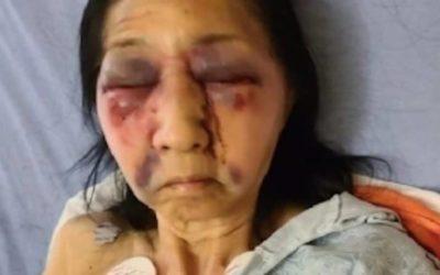 Скандалы и криминал: Установленно, что 70-летнюю бабушку избили и протащили через автобус
